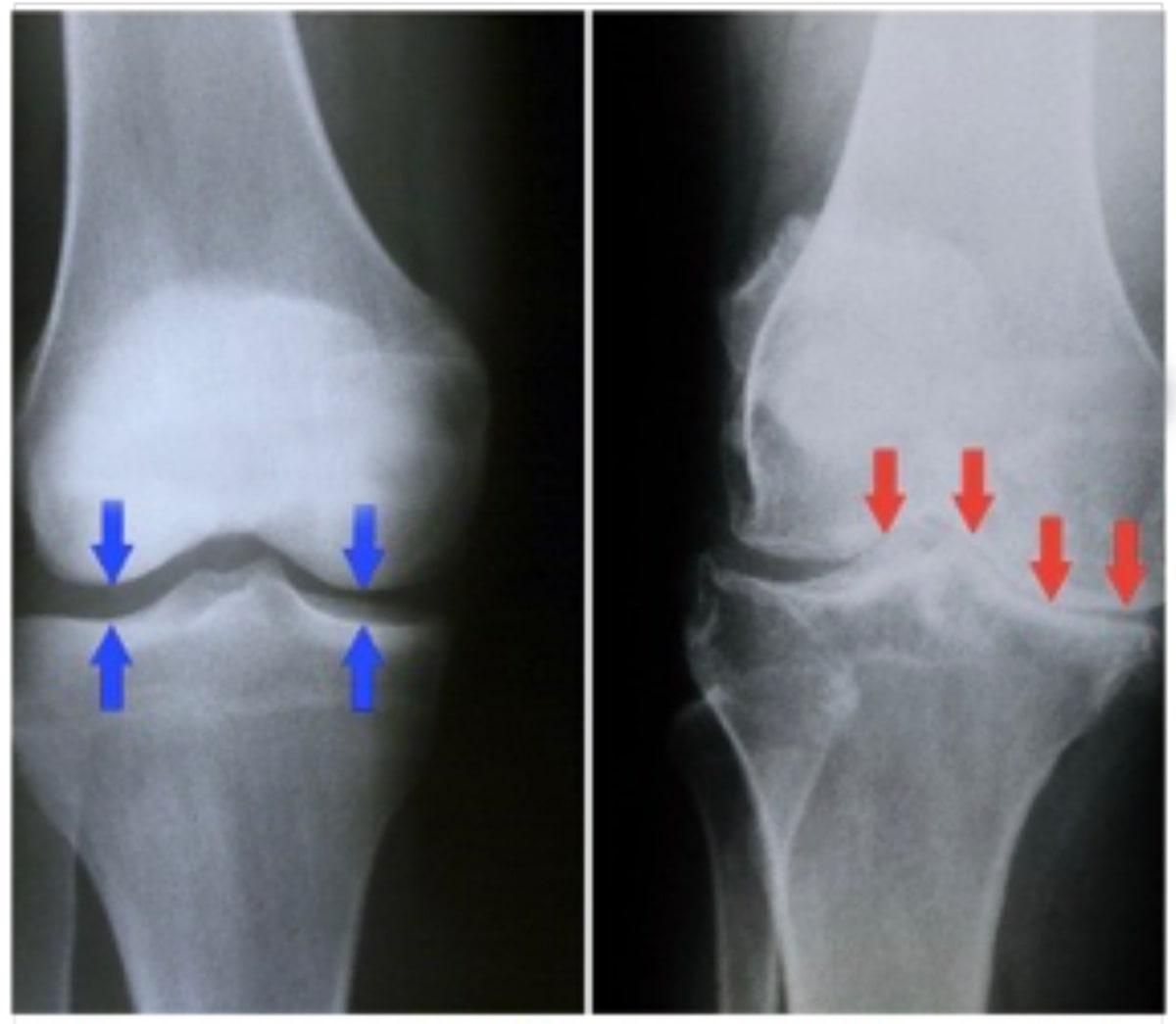 inflamación de la espinilla después de una cirugía de rodilla